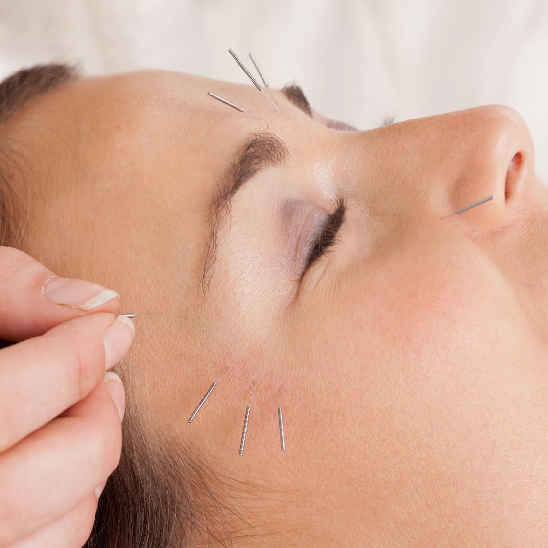 Acupuncture faciale - Acupuncture Maguire
